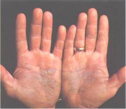 Cura di eczema batterica da rimedi di gente
