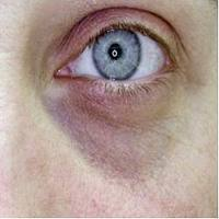 papilloma sotto l occhio que es cancer linfoma de hodgkin