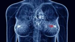 Papilloma virus cancro seno. Papilloma virus cancro seno